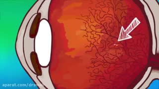 درمان مگس پران چشم با زالو درمانی- کلینیک زالو درمانی پاسداران