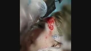 دستگاه و عملکرد میکرونیدلینگ صورت | دکتر مصطفی خدایاری