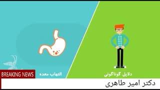 زخم معده   دکتر امیر طاهری