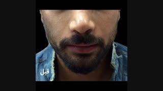 زاویه سازی صورت در مردان