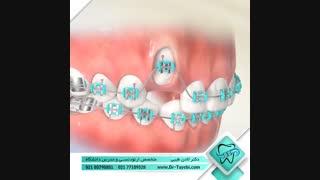 دندان نیش نهفته | دکتر لادن طیبی