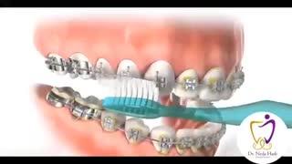 نحوه مسواک زدن دندان های ارتودنسی شده