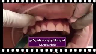 نمونه لمینت سرامیکی دندان توسط دکتر ندا هادی