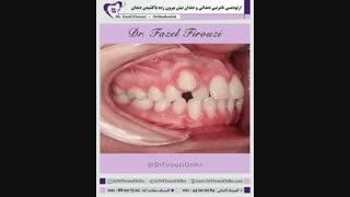 اکستراکشن دندانی | دکتر فیروزی
