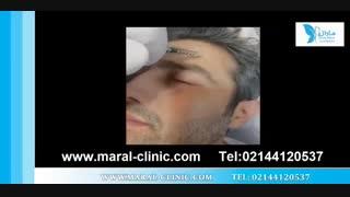 تزریق بوتاکس | فیلم تزریق بوتاکس | کلینیک پوست و مو مارال | شماره 12