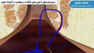 بهترین روش درمان فیستول با لیزر در کلینیک نوین