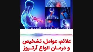 درمان آرتروز مفاصل بدون جراحی