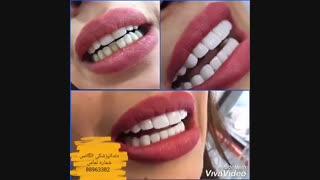 انواع ونیر کامپوزیت دندان | انواع روکش دندان | کامپوزیت دندان | فیلم ترمیم کامپوزیت دندان | قیمت نگین دندان