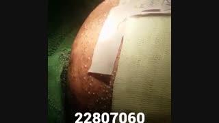 کاشت مو - دکتر ابدالی - 22807060