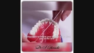 نحوه درست استفاده از نخ دندان و مسواک بین دندانی | دکتر قریشی